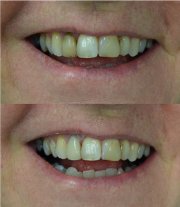 Cosmetic dentistry on one tooth