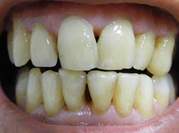 Periodontal disease black triangles