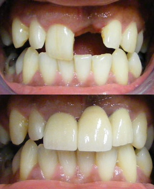 Front tooth bridge