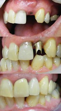 Implant gold abutment