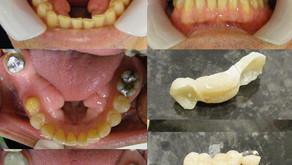 A dental bridge to replace a molar