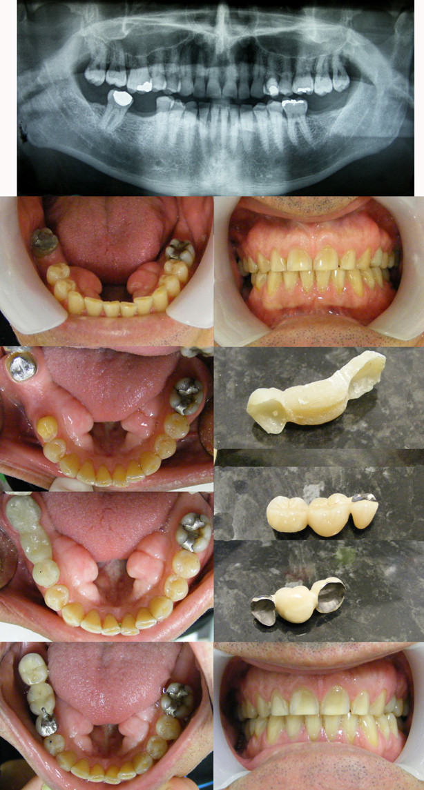 Dental bridge to replace molar