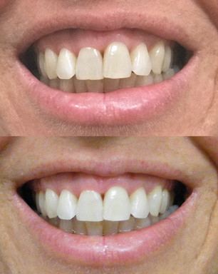 teeth whitening at bytes dental