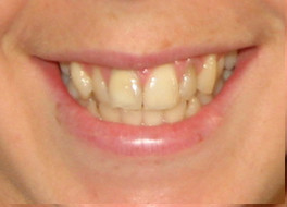 After internal dental bleaching