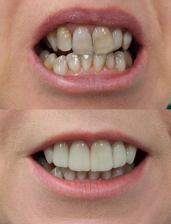 Porcelain veneers over tetracycline teeth