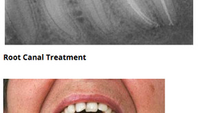 Pull out my tooth or not? Root Canal Therapy