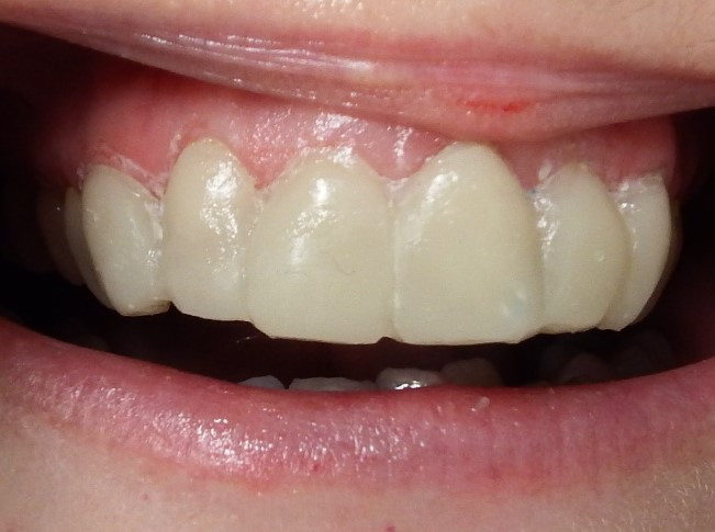 Temporary veneers on 6 teeth