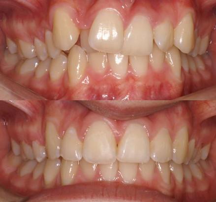 Orthodontics by Roger Peate