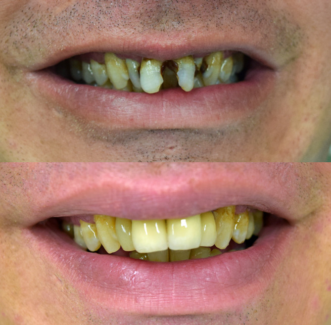 Decayed teeth restored at Bytes Dental