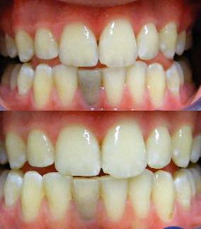 Dental bleaching of dead black tooth