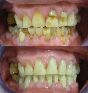 Dental erosion from lemons