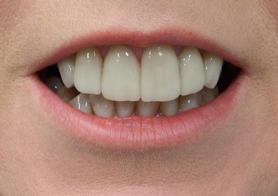 Porcelain Veneers at Bytes Dental