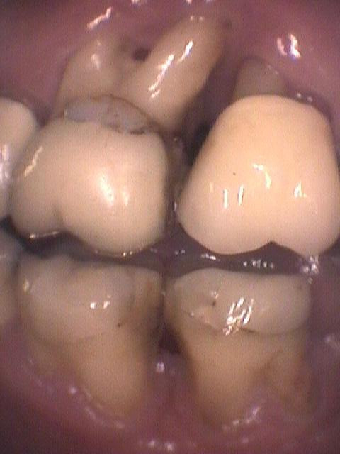 Gum recession periodontal disease.
