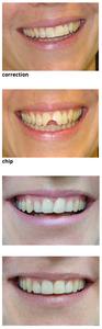 I dont want braces. Cheaper alternative.