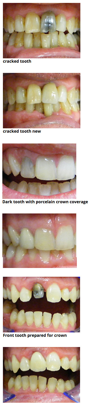 Porcelain crowns Ballina and Lismore