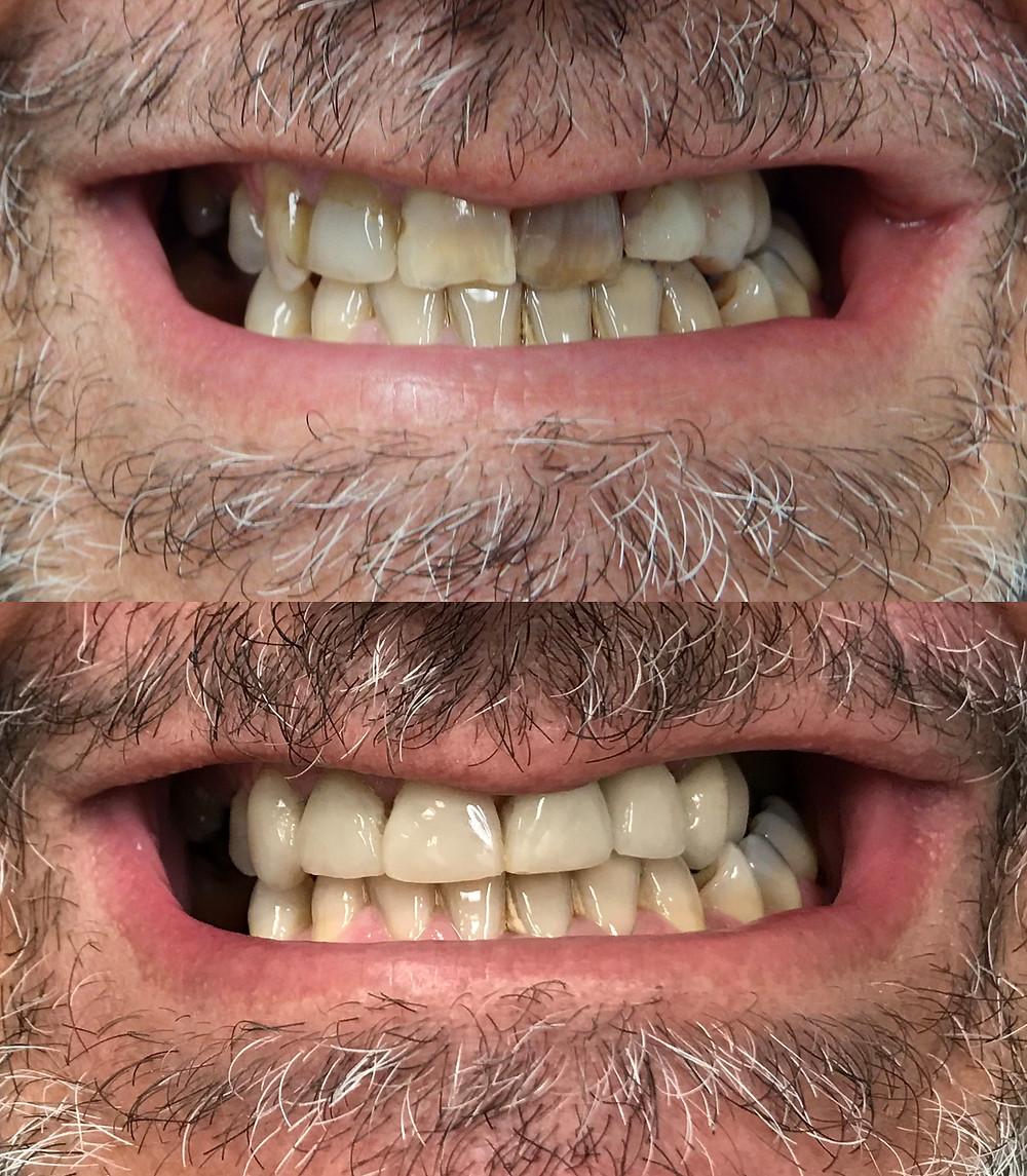 Many dark teeth look like piano keys