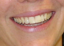 Repaired front teeth