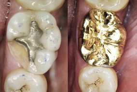 Gold crown for cracked tooth.