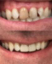 Dark tooth turned white