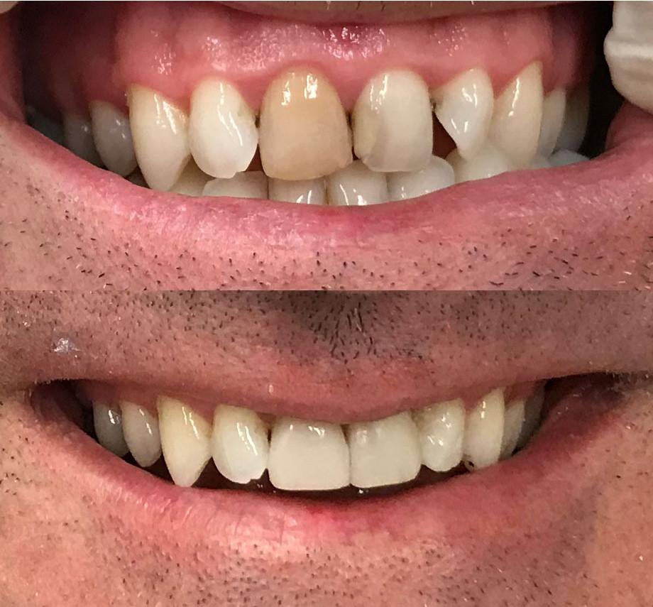 Composite resin to hide dark teeth with veneers