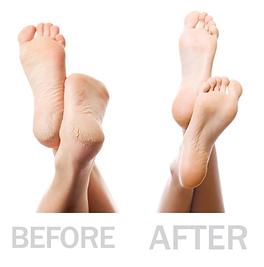 General grooming - feet.png