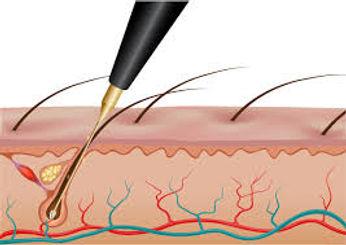 General grooming - Electrolysis diagram.