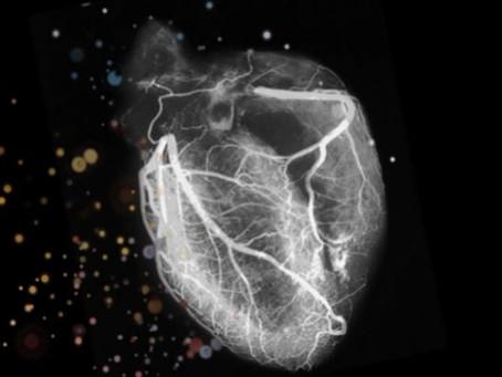 Burnout Hits Cardiology Clinicians Hard Amid COVID-19