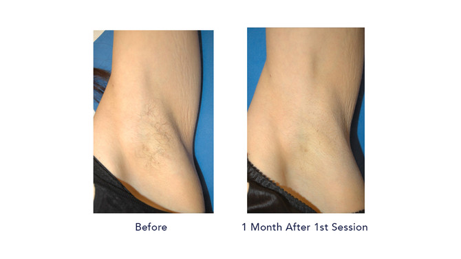 Permanent Hair Removal By Using SHR