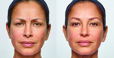Monica-full-before-and-after-450x229.jpg