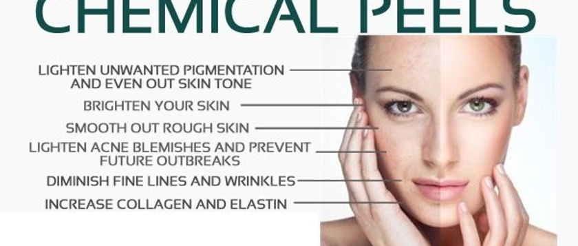 chemical-peels-benefits-600x344.jpg