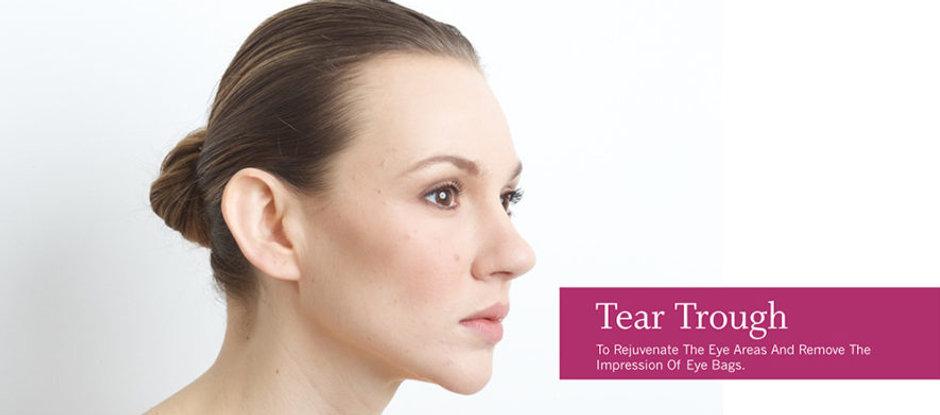 Tear-Troughs-886x423.jpg