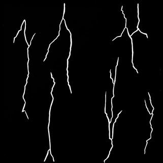 Imagined Fractures Below V