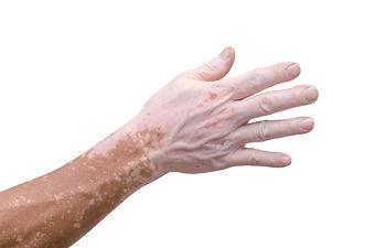 vitiligo-768x509.jpg