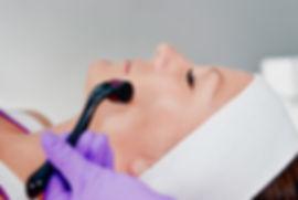 Microagulhamento-com-Dermaroller-768x513