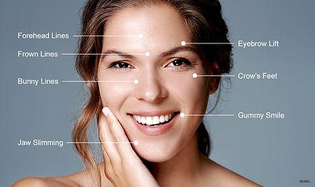 botox-areas.jpg