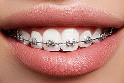 braces ortodoncja ortodonta aparat stomatologiczny bezrzecze