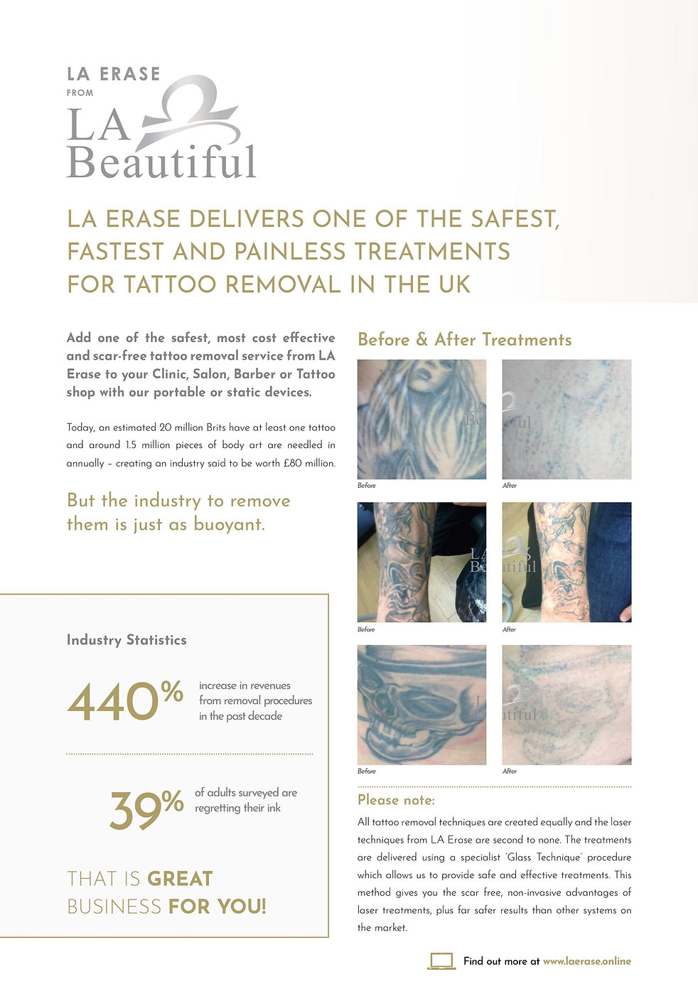 LA Erase Tattoo Removal.jpg