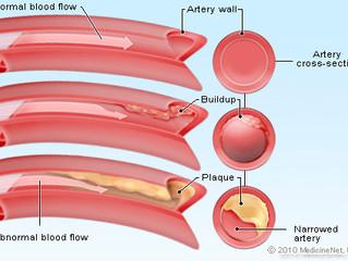 Cholesterol: příčina nebo následek?