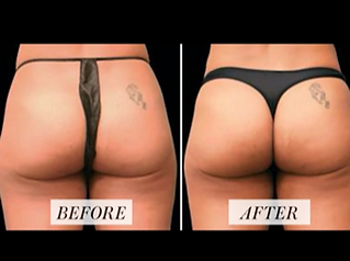 buttox before after.png