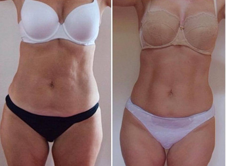 Fat loss results