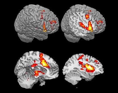 imagerie cerebrale.jpg