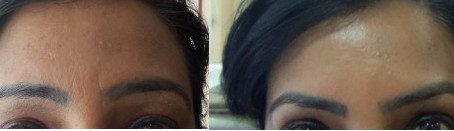 Eyebrow shaping with Botox