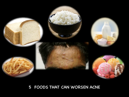 5 foods that can worsen acne