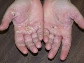 hand eczema.jpeg