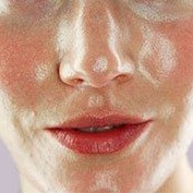Natural ways to combat oily skin