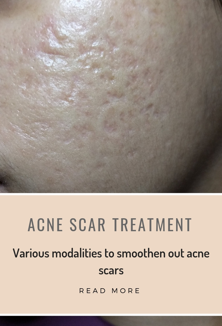 acne scars rx.jpg