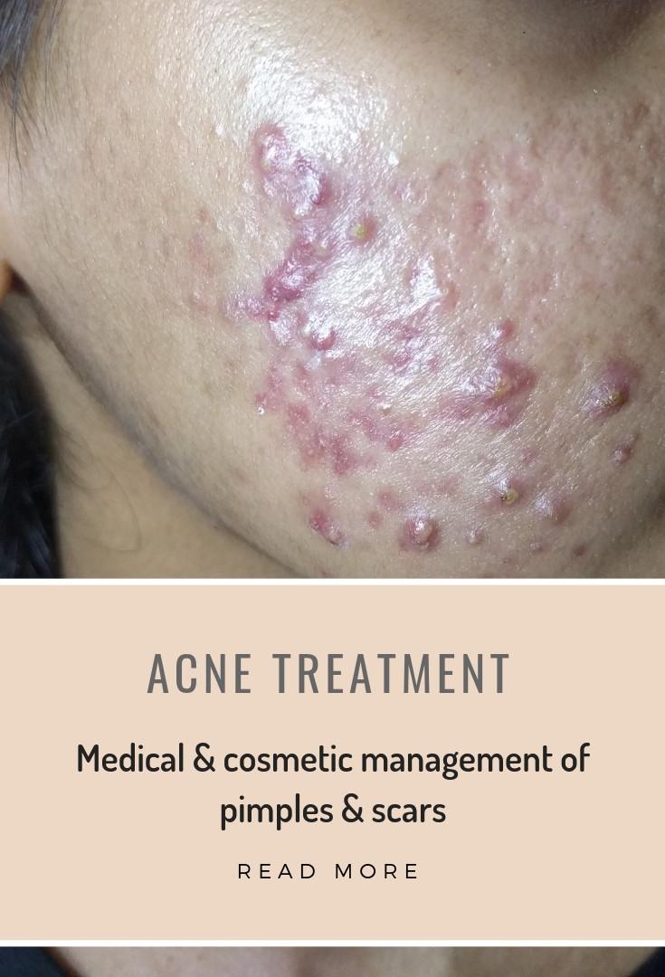 acne rx.jpg