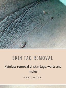 Skin tag removal.jpg
