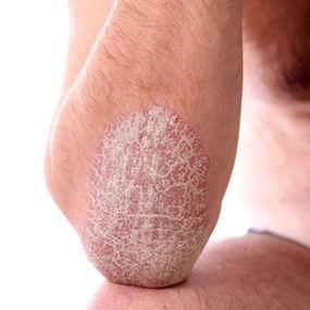 general dermat psoriasis.jpg