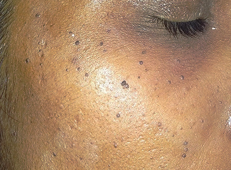 Common causes of brown spots on the face and how to get rid of them